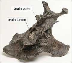 Origin of Cancer